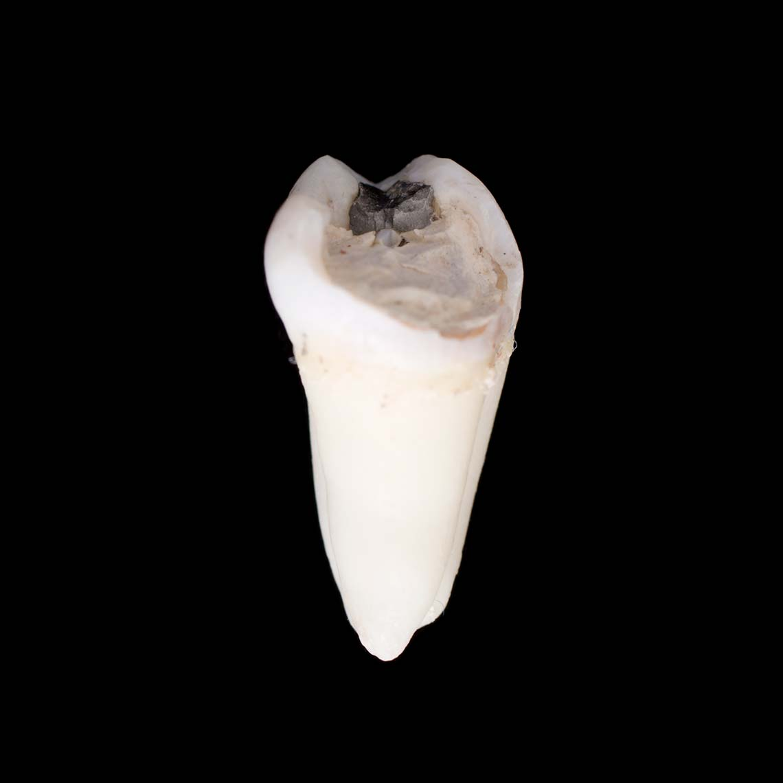 tooth_7422.jpg